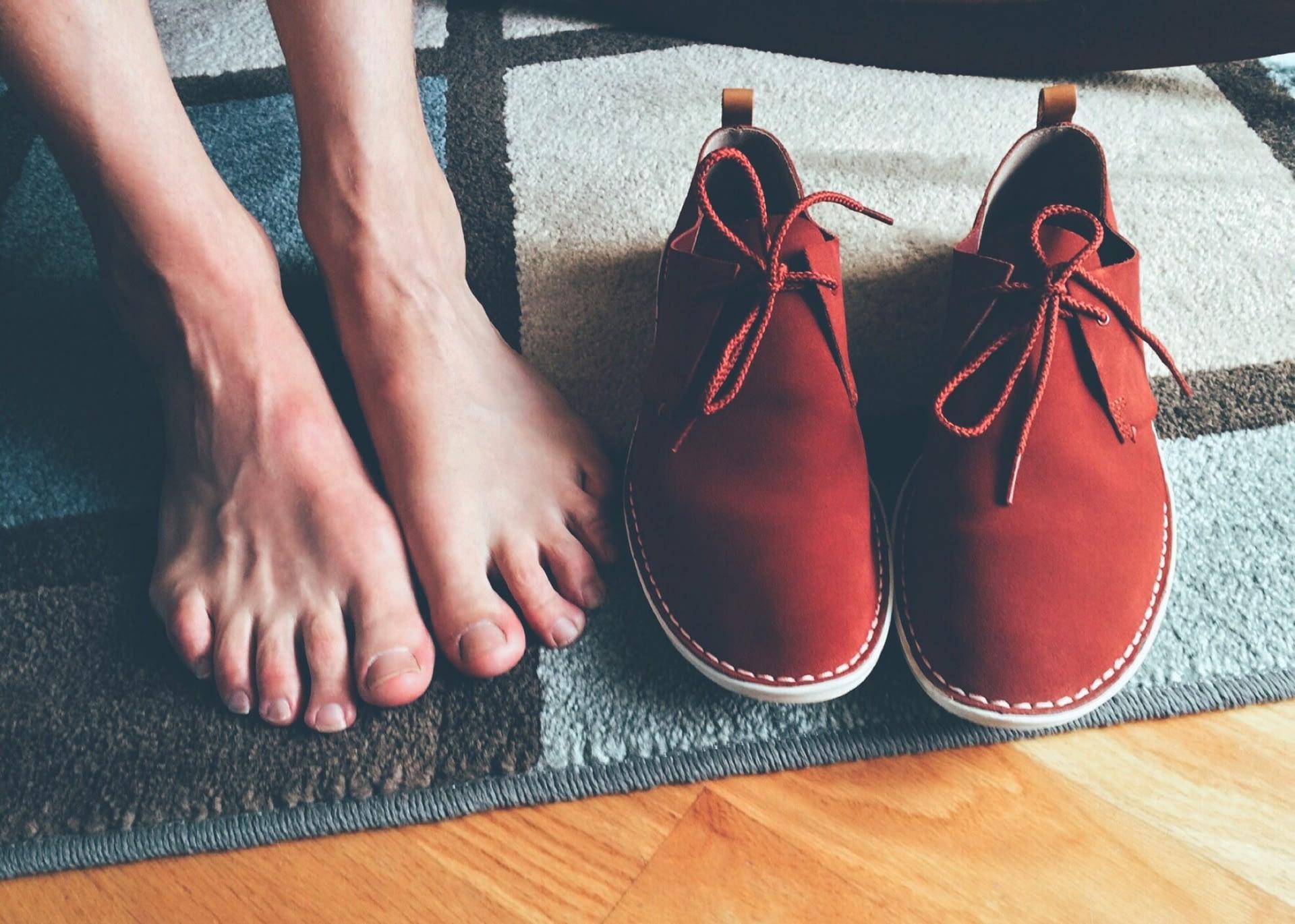 Flat Feet - Pes Planus